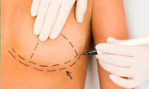 Мастопексия груди: что это, зачем нужно и как проводится